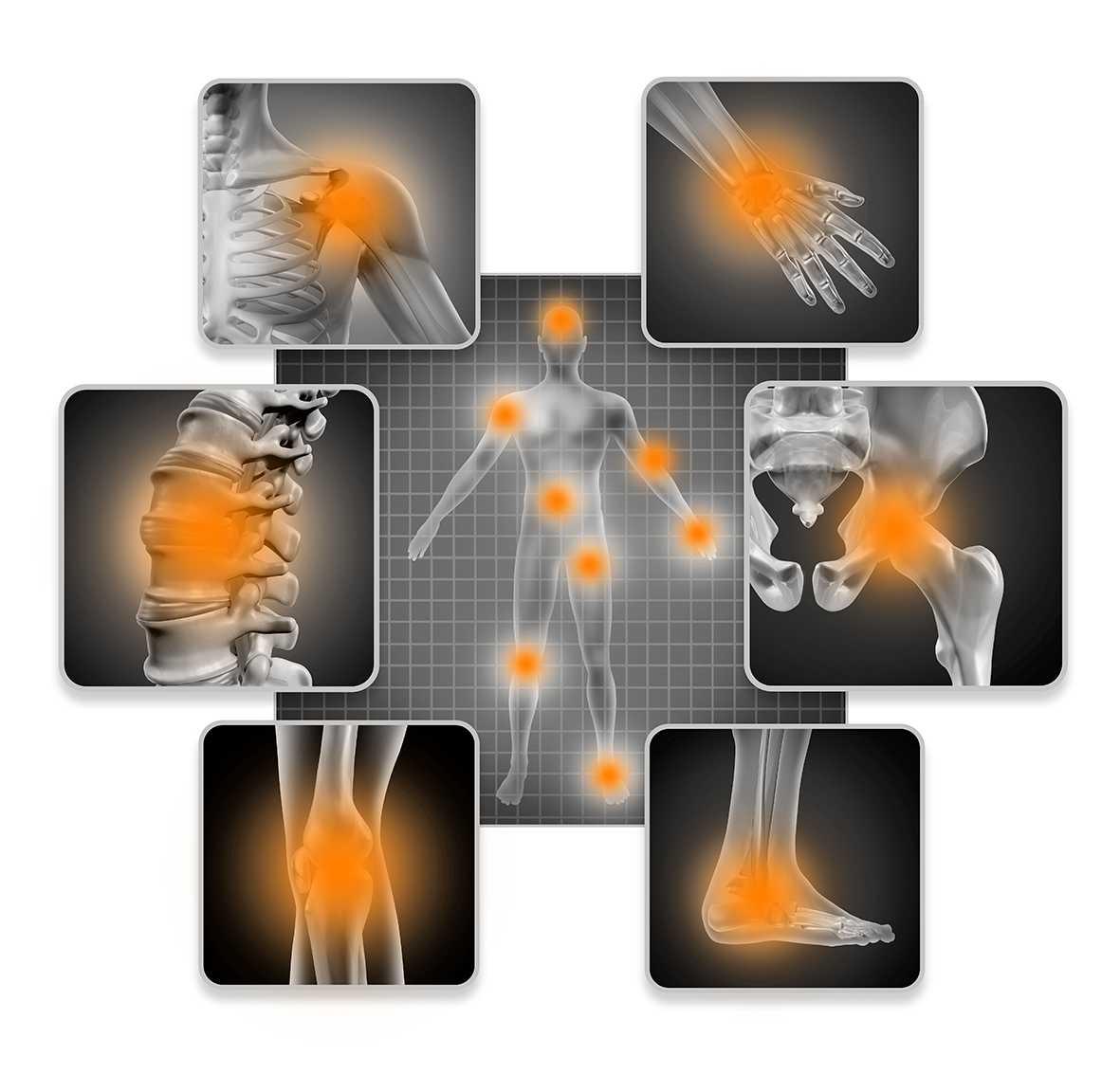 acupunctuur therapie bij pijn